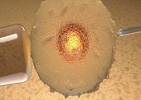 Fecundación in vitro con donación óvulos